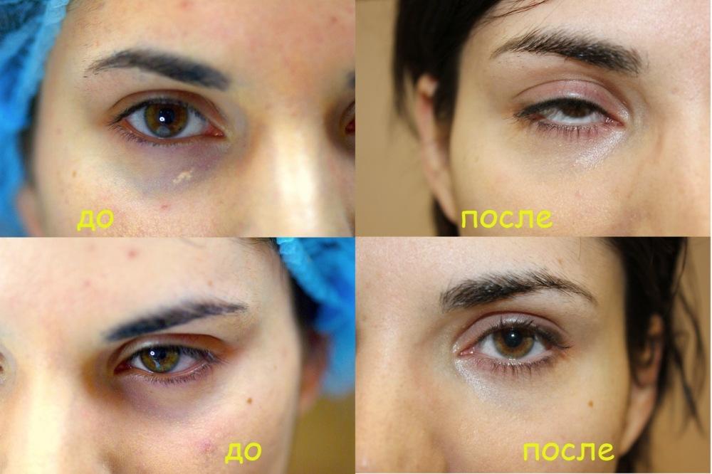 Макияж глаз с мешками под глазом